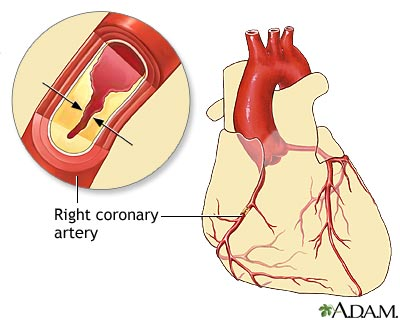 coronary artery disease nursing care plan This is the part 2 of the coronary artery disease and  included in the nursing care plan  the right coronary artery produces an infarction in which .