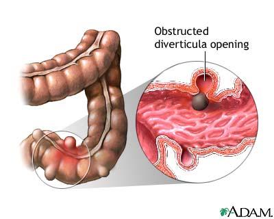 Nursing Interventions For Diverticular Diseasenursing File