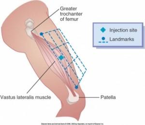 Vastus Lateralis Injection Site Diagram