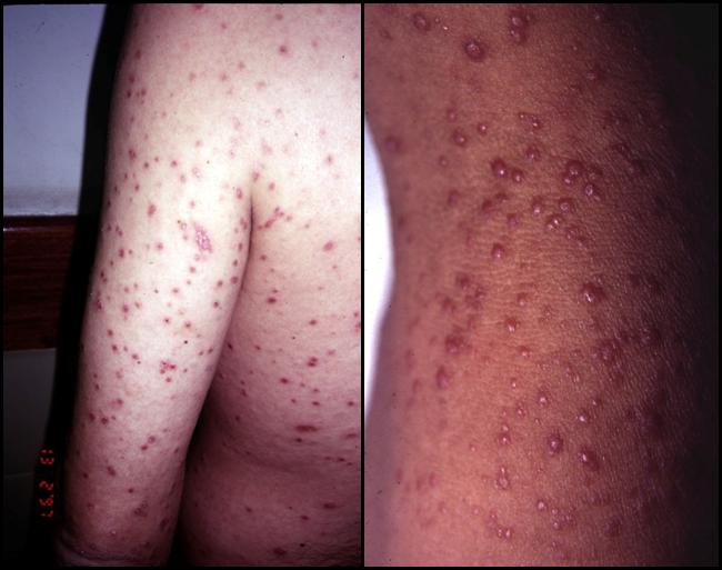 histoplasmosis-disseminated-lesions