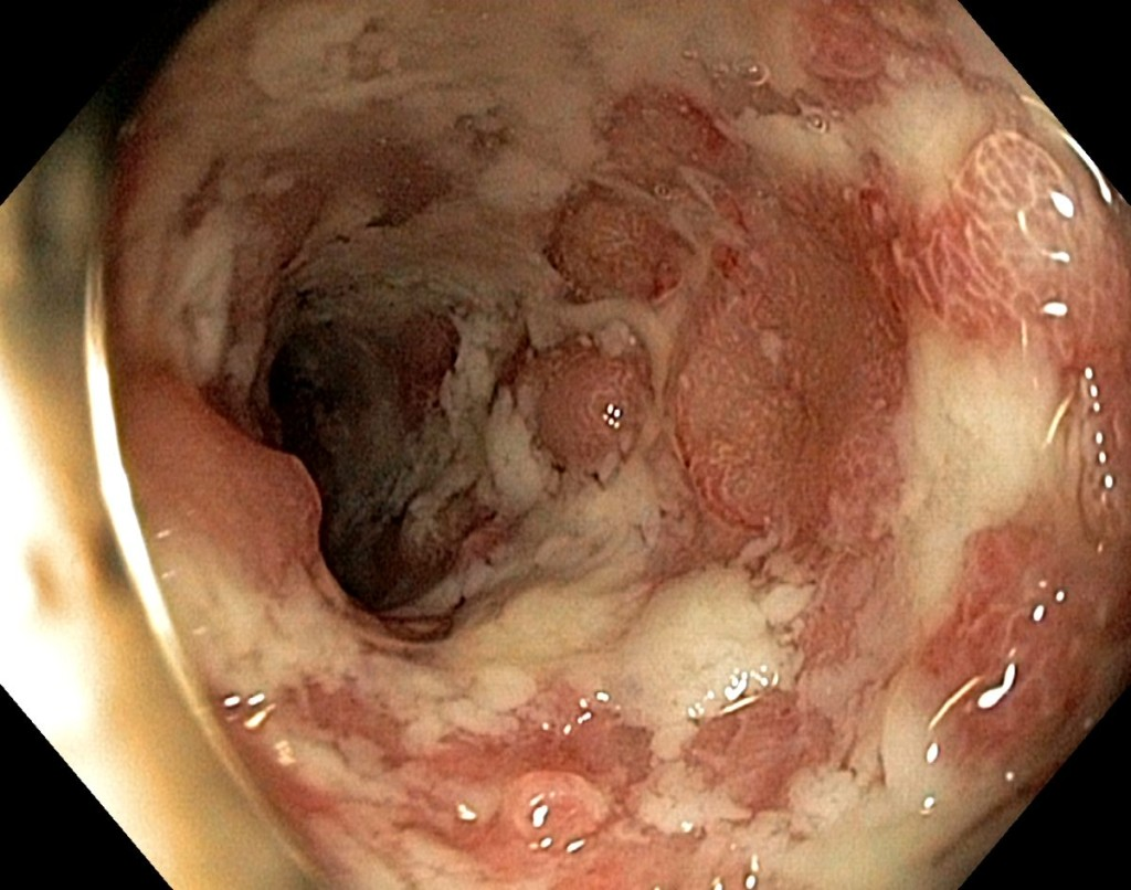 severe ulcerative
