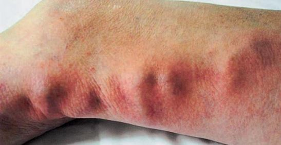 thrombophlebitis-picture