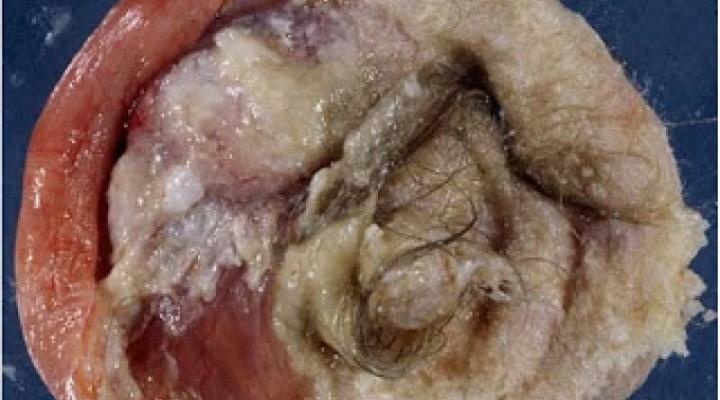 Hydatidiform Mole — A Cause of Clinical Hyperthyroidism ...